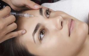 Botox Stirnfalte