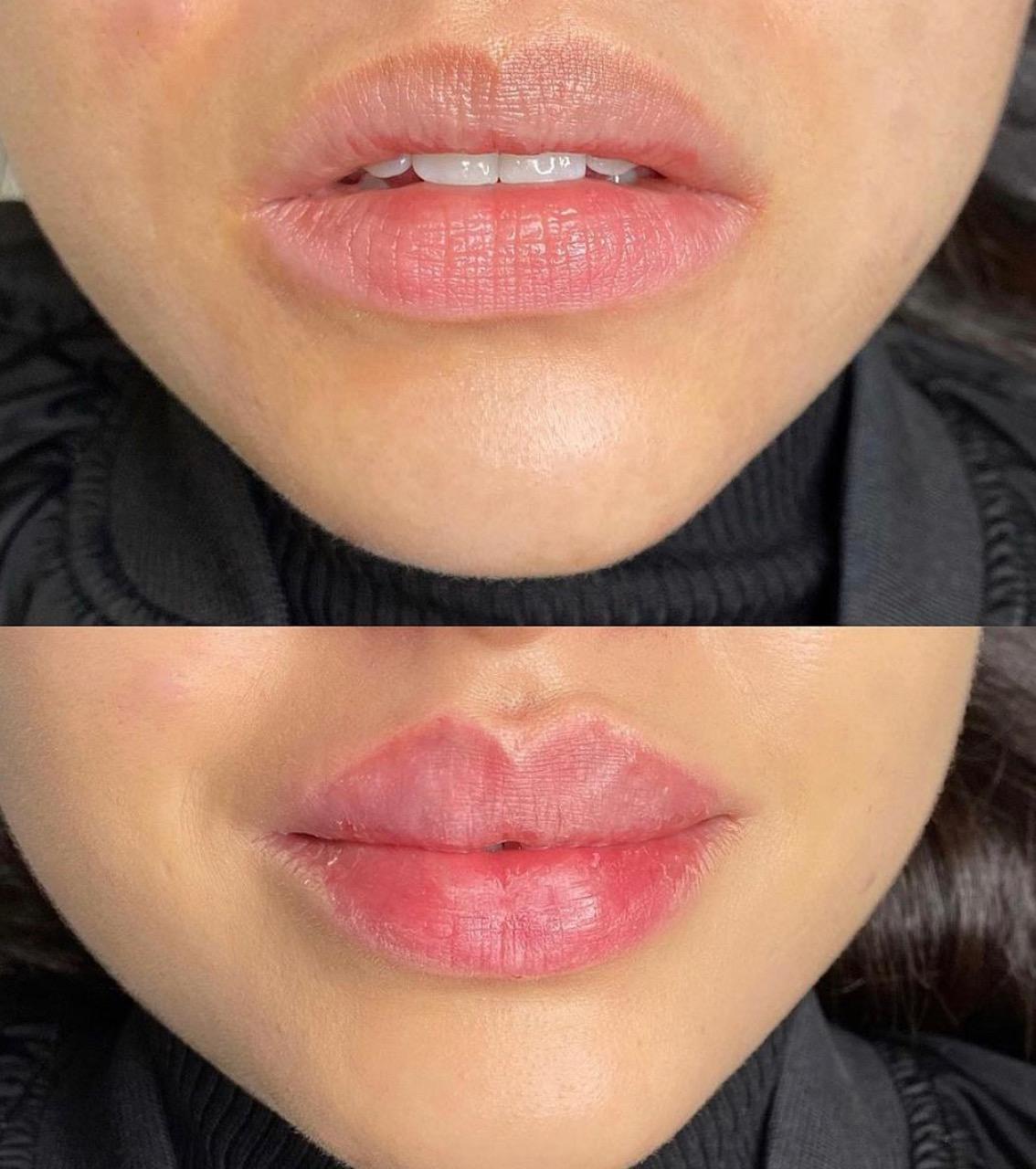 Lippen aufspritzen SW BeautyBar Zürich