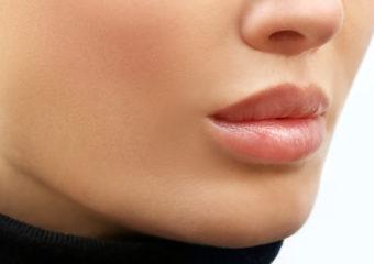 Lippen aufspritzen Russian Lips nachher