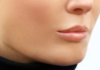 Lippen aufspritzen Russian Lips vorher
